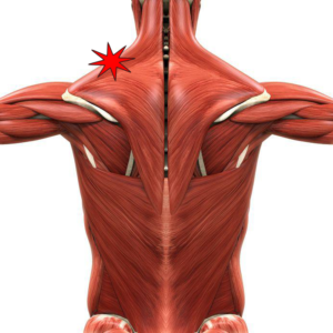 how to get rid of muscle knots in neck