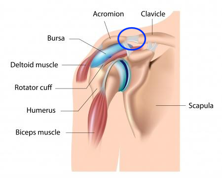 Trapezius Knot? Check The AC Joint For A Solution