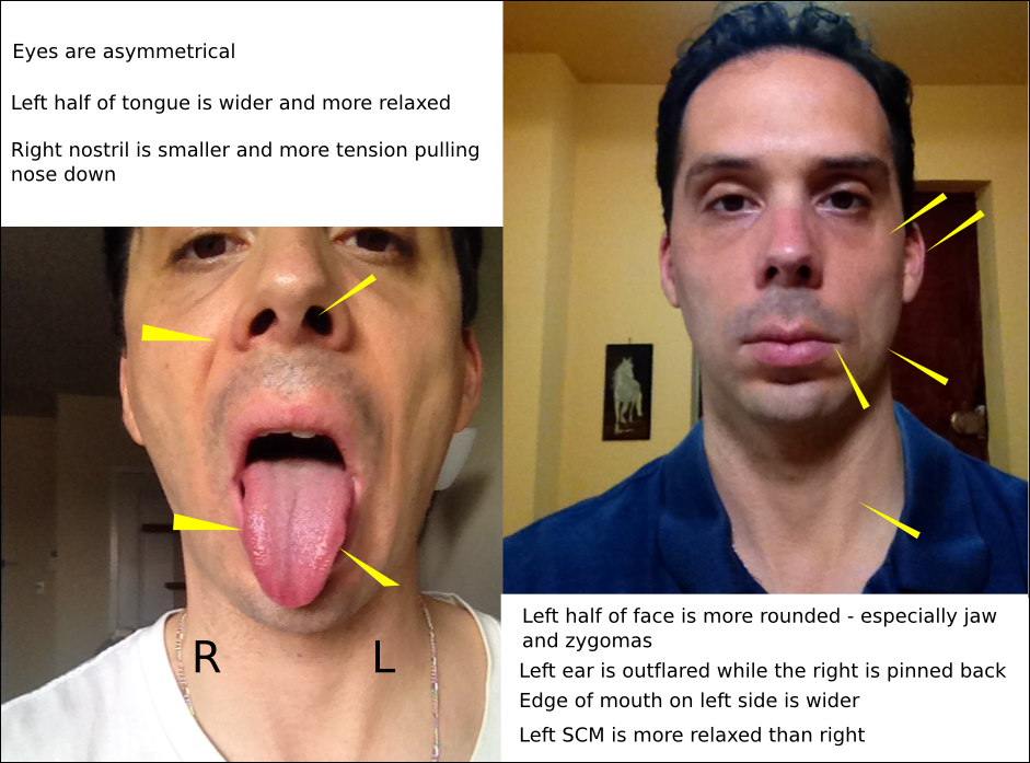 in symptoms Tongue adults tied