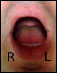 DL Tongue In - 1