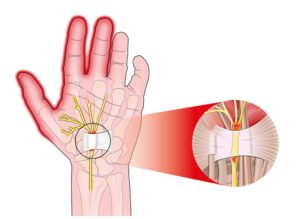 White band is the transverse carpal ligament